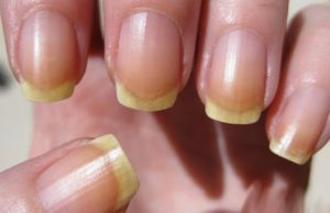 signification sante ongle jaune