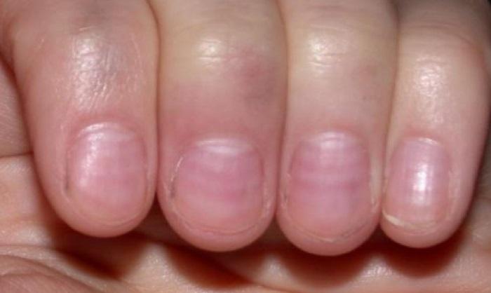 santé ongles striés