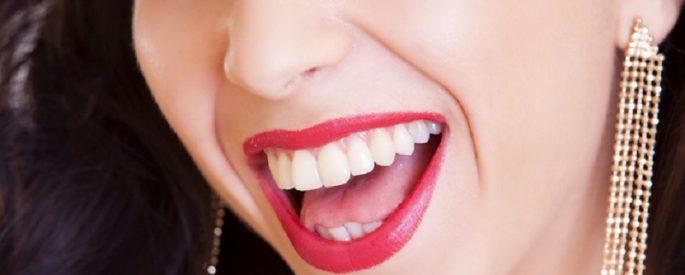 dent blanche astuce naturelle