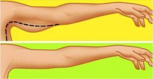exercice bras mou