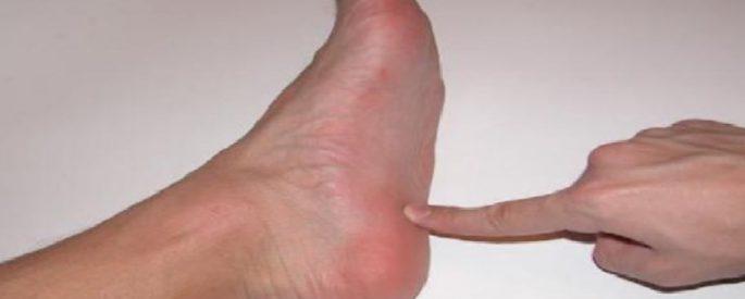 douleur pied astuce naturelle