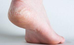 pieds fendilles