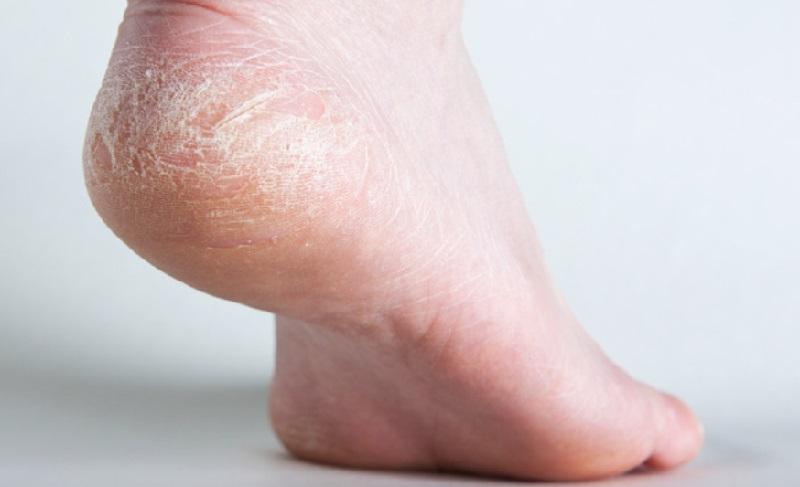 pieds tres secs talons fendilles
