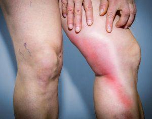 astuce sante symptome thrombose veineuse jambe rougeur