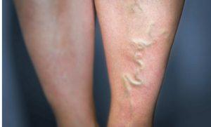 astuce sante symptome thrombose veineuse jambe veine