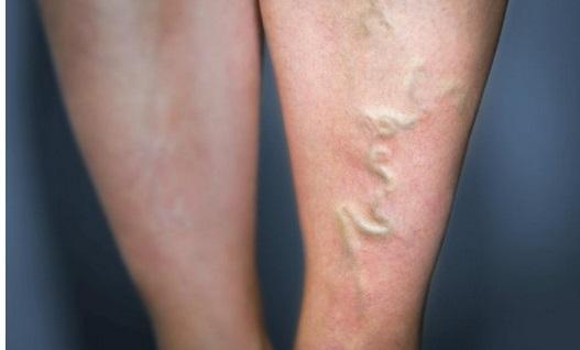 thrombose jambe symptome