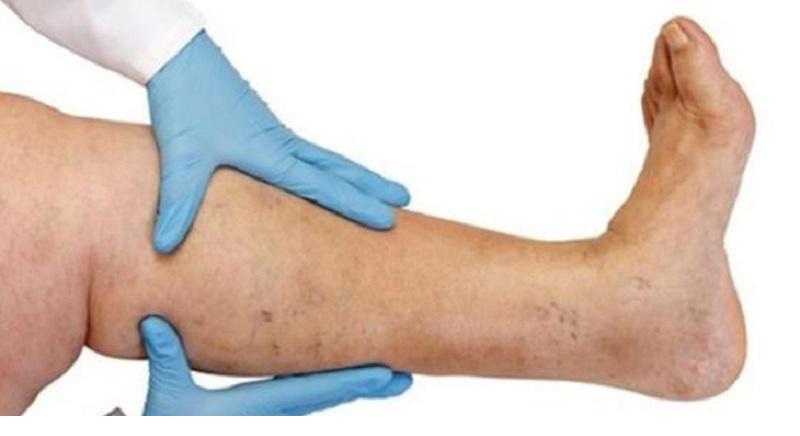Souffrez vous d une thrombose veineuse profonde sans le savoir voici 10 sympt mes de la tvp - Se couper les veines sans douleur ...